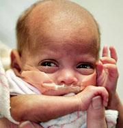 Самые маленькие младенцы мира. Фото
