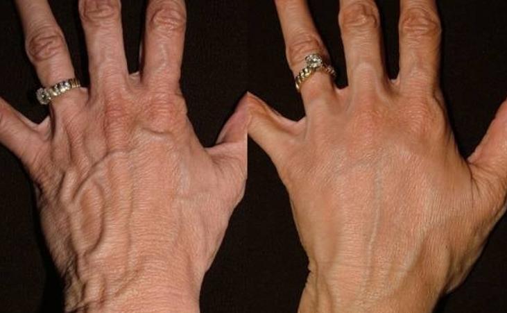 Омоложение рук: несколько ценных рецептов
