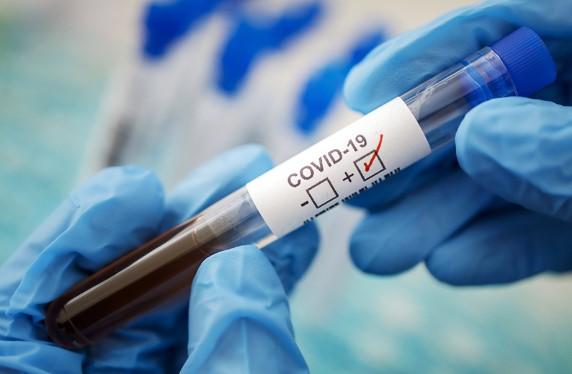Тесты на коронавирус из США заражены коронавирусом
