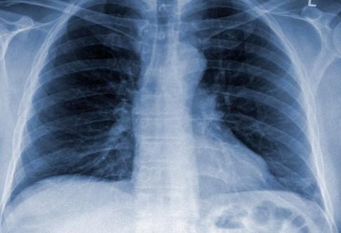 Три первых симптома, по которым можно распознать пневмонию